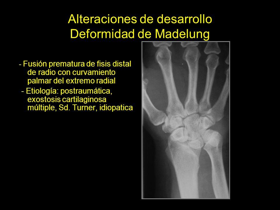 Alteraciones de desarrollo Deformidad de Madelung - Fusión prematura de fisis distal de radio con curvamiento palmar del extremo radial - Etiología: postraumática, exostosis cartilaginosa múltiple, Sd.