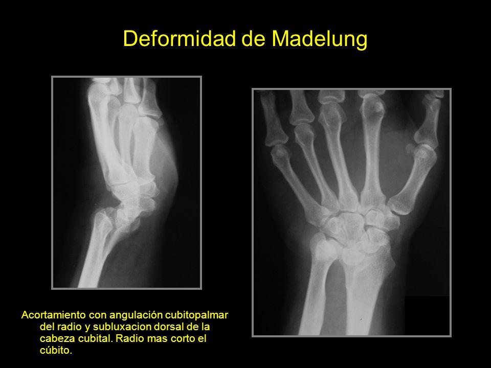 Deformidad de Madelung Acortamiento con angulación cubitopalmar del radio y subluxacion dorsal de la cabeza cubital.