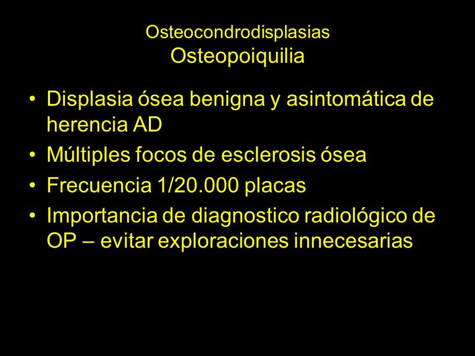 Osteocondrodisplasias Osteopoiquilia Displasia ósea benigna y asintomática de herencia AD Múltiples focos de esclerosis ósea Frecuencia 1/20.000 placas Importancia de diagnostico radiológico de OP – evitar exploraciones innecesarias