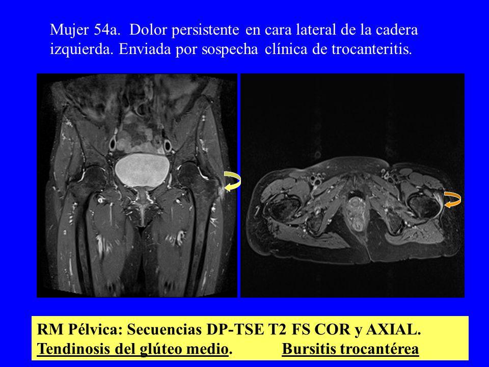 RM Pélvica: Secuencias DP-TSE T2 FS COR y AXIAL. Tendinosis del glúteo medio. Bursitis trocantérea Mujer 54a. Dolor persistente en cara lateral de la