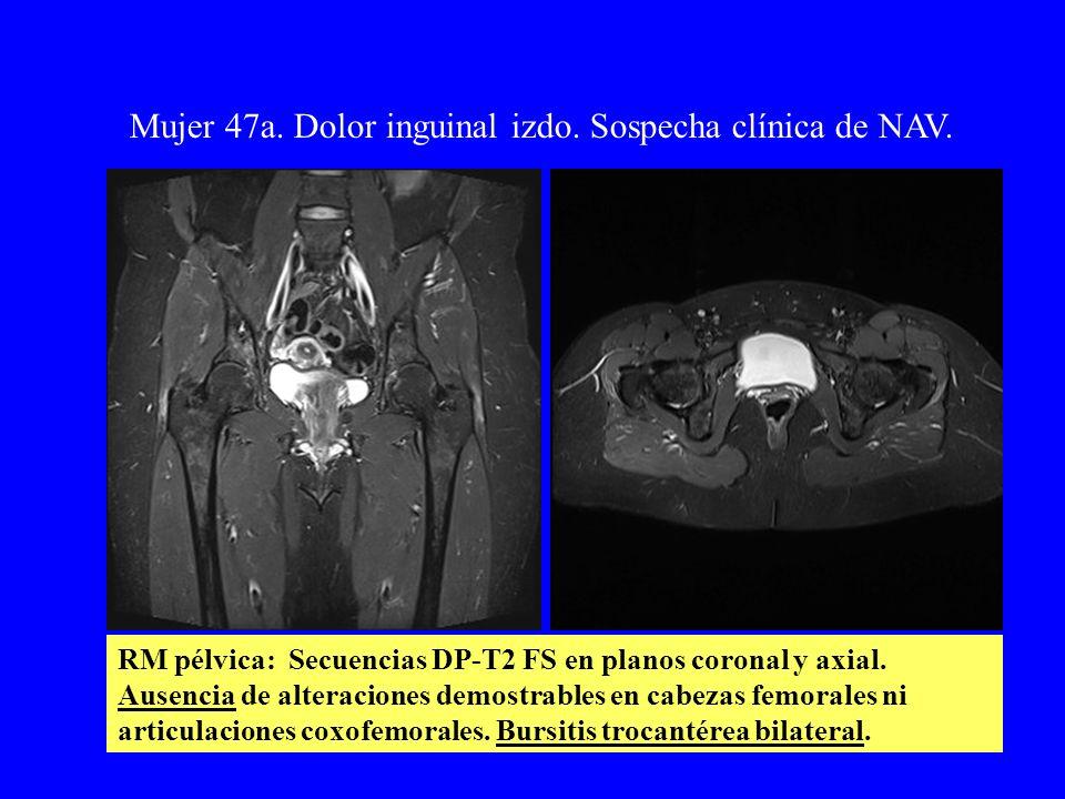 Mujer 47a. Dolor inguinal izdo. Sospecha clínica de NAV. RM pélvica: Secuencias DP-T2 FS en planos coronal y axial. Ausencia de alteraciones demostrab