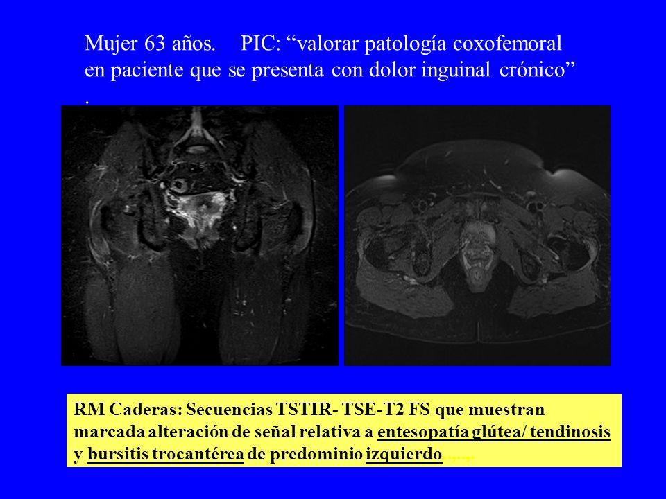 Mujer 63 años. PIC: valorar patología coxofemoral en paciente que se presenta con dolor inguinal crónico. RM Caderas: Secuencias TSTIR- TSE-T2 FS que