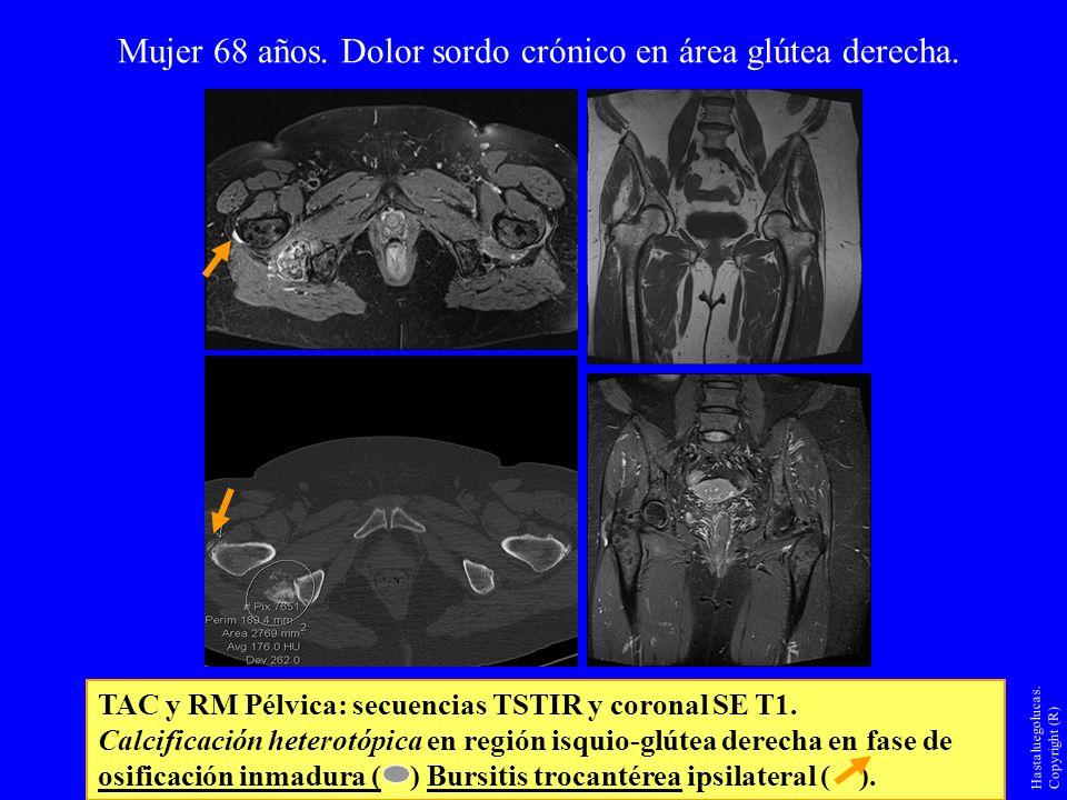 Mujer 68 años. Dolor sordo crónico en área glútea derecha. TAC y RM Pélvica: secuencias TSTIR y coronal SE T1. Calcificación heterotópica en región is