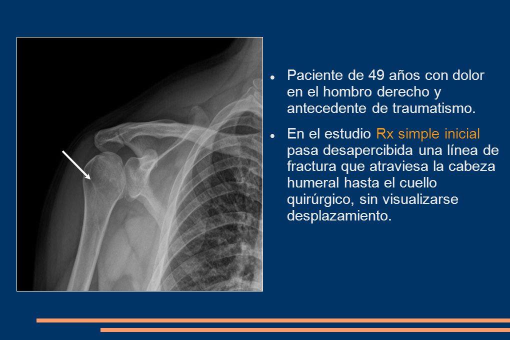 Paciente de 49 años con dolor en el hombro derecho y antecedente de traumatismo. En el estudio Rx simple inicial pasa desapercibida una línea de fract