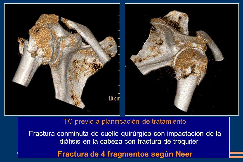 TC previo a planificación de tratamiento Fractura conminuta de cuello quirúrgico con impactación de la diáfisis en la cabeza con fractura de troquiter