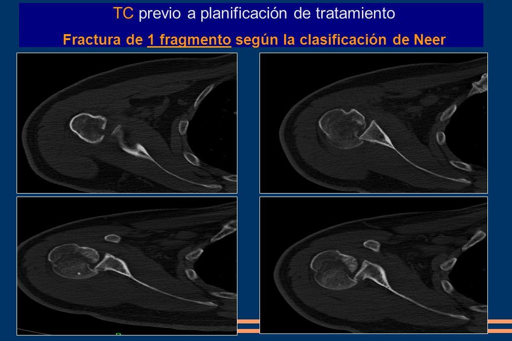 TC previo a planificación de tratamiento Fractura de 1 fragmento según la clasificación de Neer