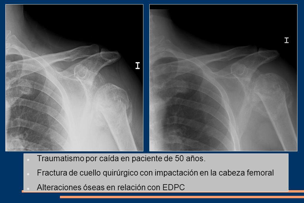 Traumatismo por caída en paciente de 50 años. Fractura de cuello quirúrgico con impactación en la cabeza femoral Alteraciones óseas en relación con ED