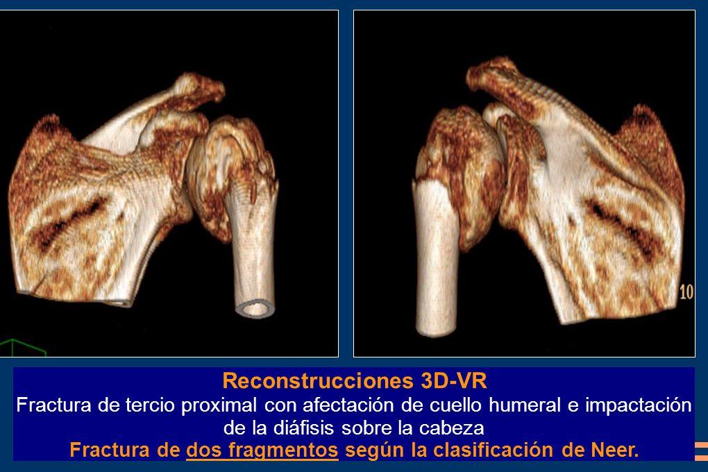 Reconstrucciones 3D-VR Fractura de tercio proximal con afectación de cuello humeral e impactación de la diáfisis sobre la cabeza Fractura de dos fragm