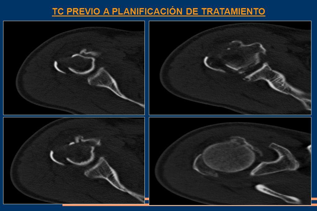 Fractura de tercio proximal de húmero, fractura de troquiter con desplazamiento craneal, fractura de la cabeza humeral y fractura de troquin.