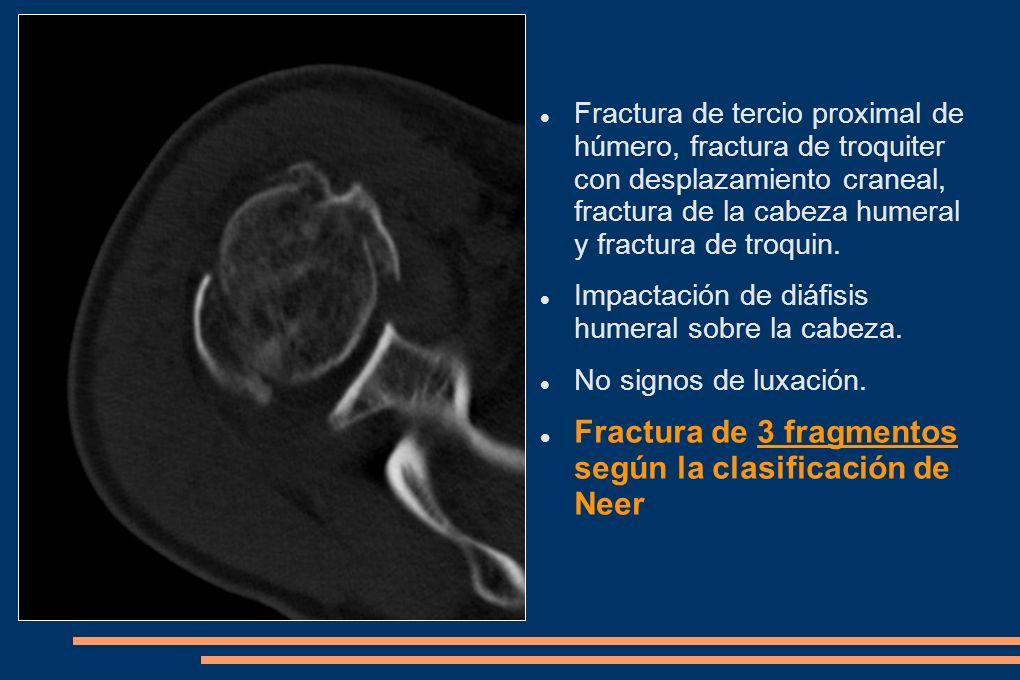 Fractura de tercio proximal de húmero, fractura de troquiter con desplazamiento craneal, fractura de la cabeza humeral y fractura de troquin. Impactac