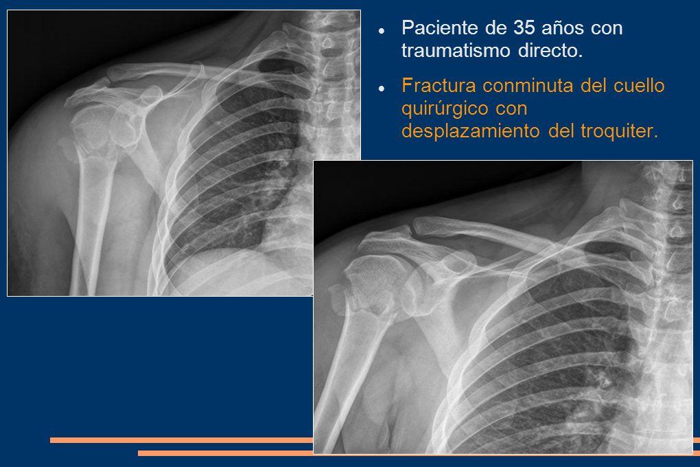 Paciente de 35 años con traumatismo directo. Fractura conminuta del cuello quirúrgico con desplazamiento del troquiter.