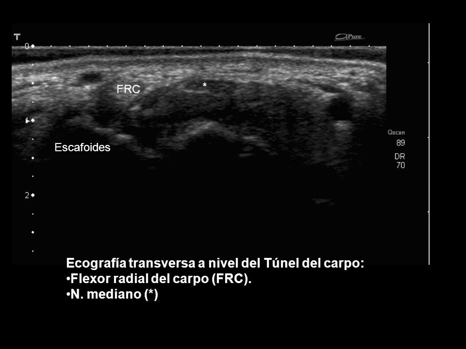 Ecografía longitudinal de los tendones flexores: Superficial ( TFS) Produndo (TFP) N.