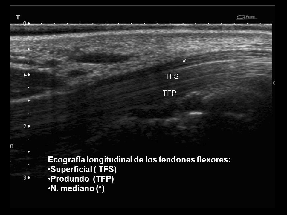 Falange proximal Ecografía transversal a través de los tendones flexores del dedo en la falange proximal: División del tendón superficial (TS) que rodea al tendón profundo (TP) que no puede visualizarse por artefacto de anisotropía.
