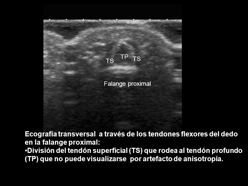 Falange proximal Falange media Falange distal Ecografía longitudinal a nivel de la superficie flexora del dedo Inserción del tendón flexor superficial del dedo Inserción del tendón flexor profundo del dedo