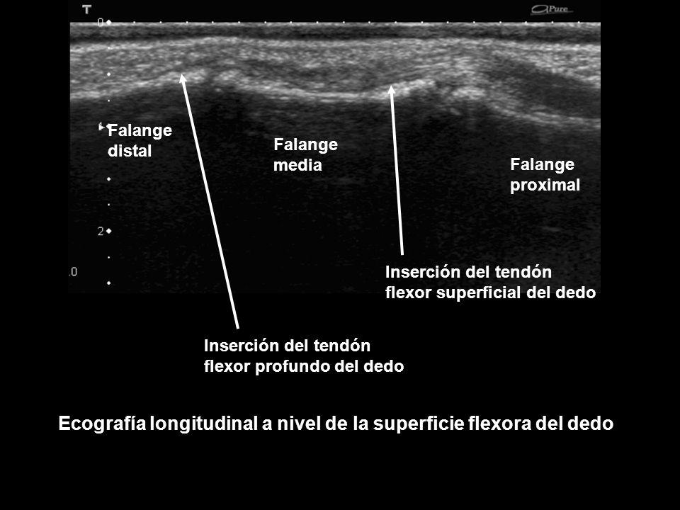 Falange proximal Falange media Falange distal Ecografía longitudinal a nivel de la superficie flexora del dedo Inserción del tendón flexor superficial
