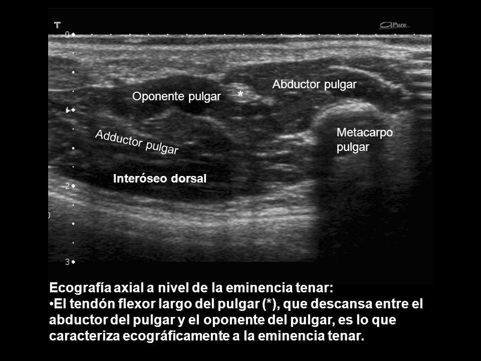 Ecografía axial a nivel de la eminencia tenar: El tendón flexor largo del pulgar (*), que descansa entre el abductor del pulgar y el oponente del pulg