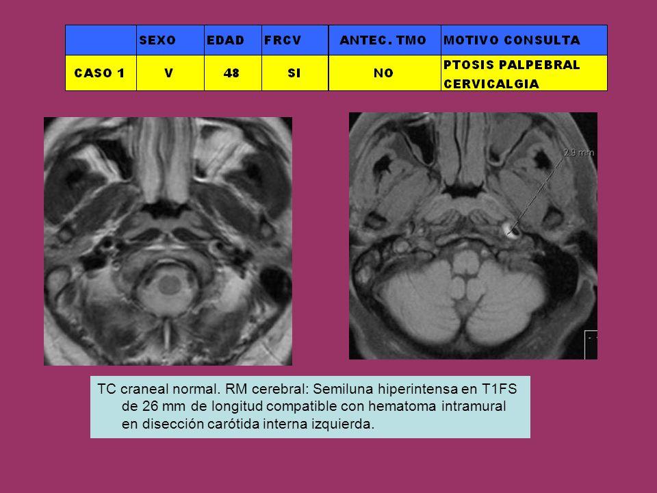 TC craneal normal. RM cerebral: Semiluna hiperintensa en T1FS de 26 mm de longitud compatible con hematoma intramural en disección carótida interna iz