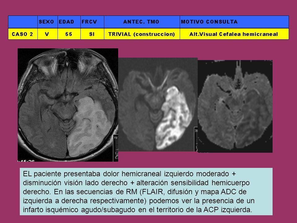 EL paciente presentaba dolor hemicraneal izquierdo moderado + disminución visión lado derecho + alteración sensibilidad hemicuerpo derecho. En las sec