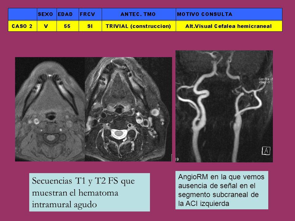 Secuencias T1 y T2 FS que muestran el hematoma intramural agudo AngioRM en la que vemos ausencia de señal en el segmento subcraneal de la ACI izquierd