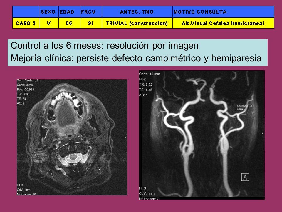 Control a los 6 meses: resolución por imagen Mejoría clínica: persiste defecto campimétrico y hemiparesia