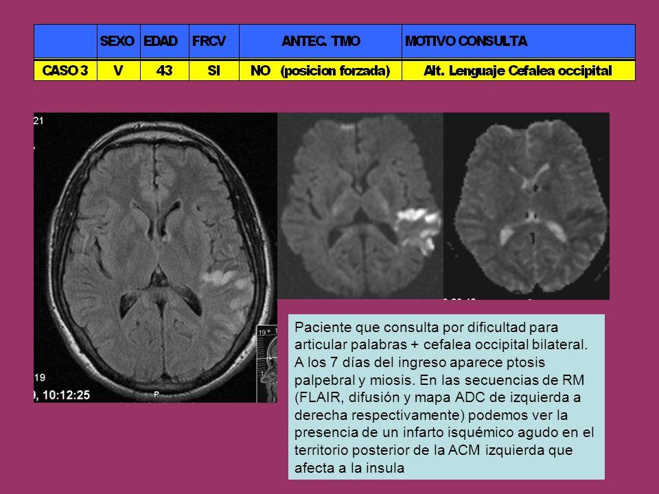 Paciente que consulta por dificultad para articular palabras + cefalea occipital bilateral. A los 7 días del ingreso aparece ptosis palpebral y miosis