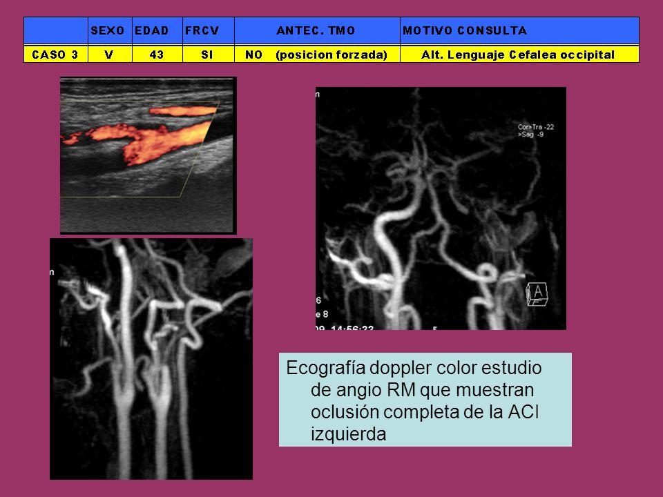 Ecografía doppler color estudio de angio RM que muestran oclusión completa de la ACI izquierda