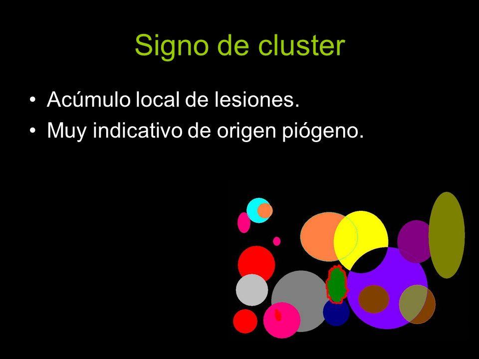 Signo de cluster Acúmulo local de lesiones. Muy indicativo de origen piógeno.