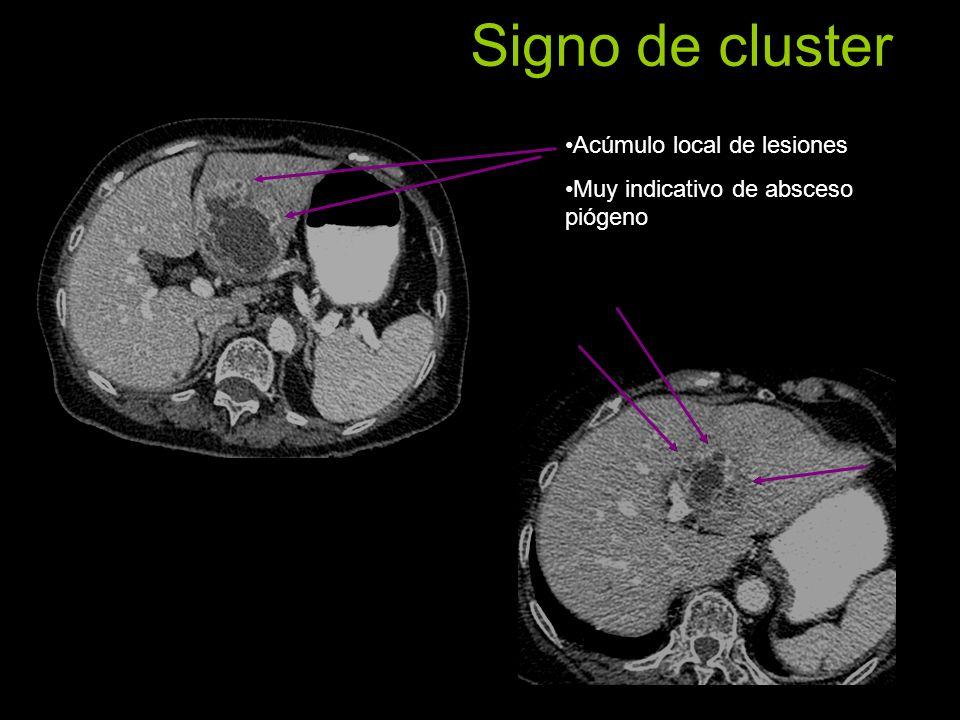 Signo de cluster Acúmulo local de lesiones Muy indicativo de absceso piógeno