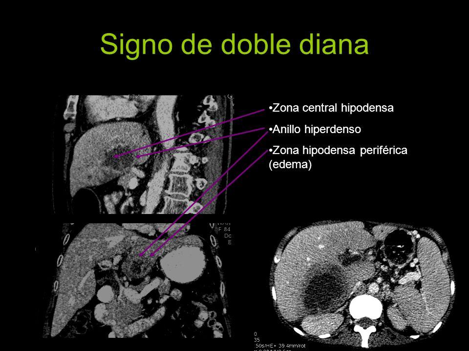 Signo de doble diana Zona central hipodensa Anillo hiperdenso Zona hipodensa periférica (edema)