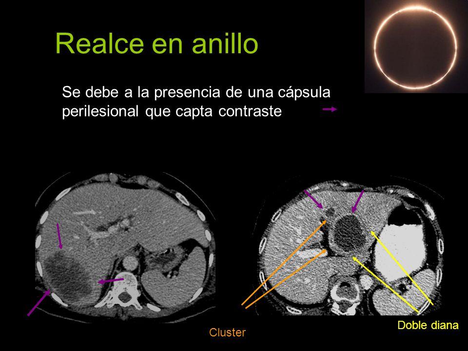 Realce en anillo Se debe a la presencia de una cápsula perilesional que capta contraste Cluster Doble diana