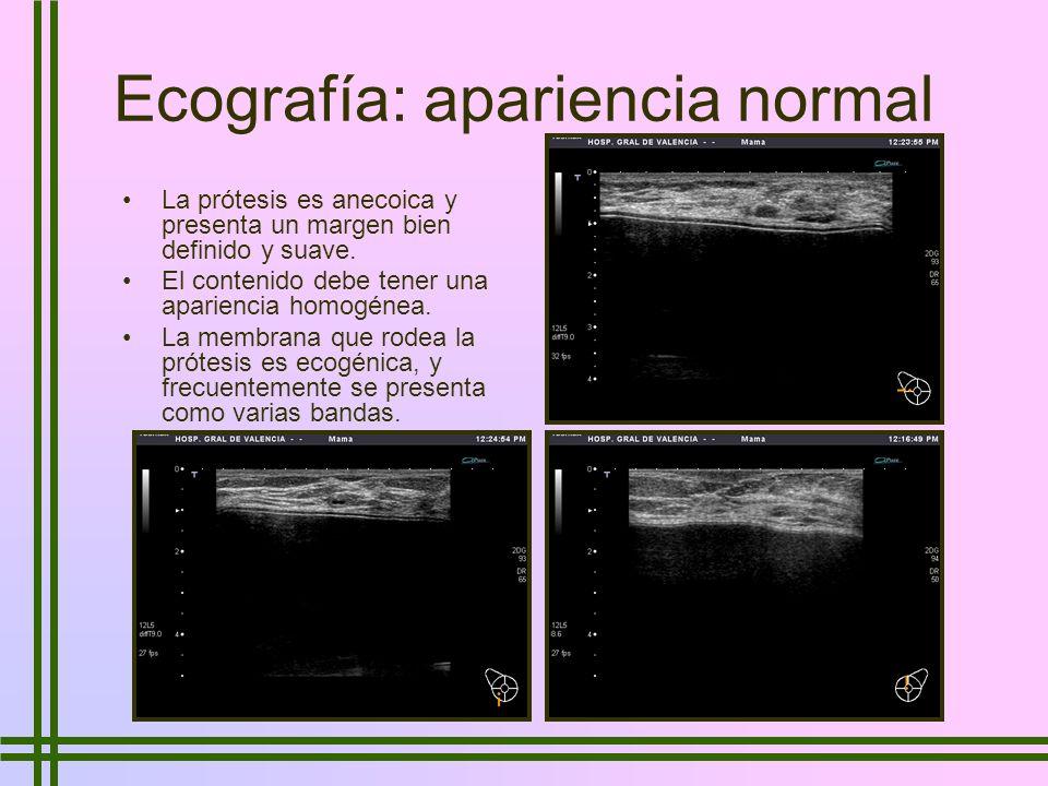 Ecografía: apariencia normal La prótesis es anecoica y presenta un margen bien definido y suave. El contenido debe tener una apariencia homogénea. La