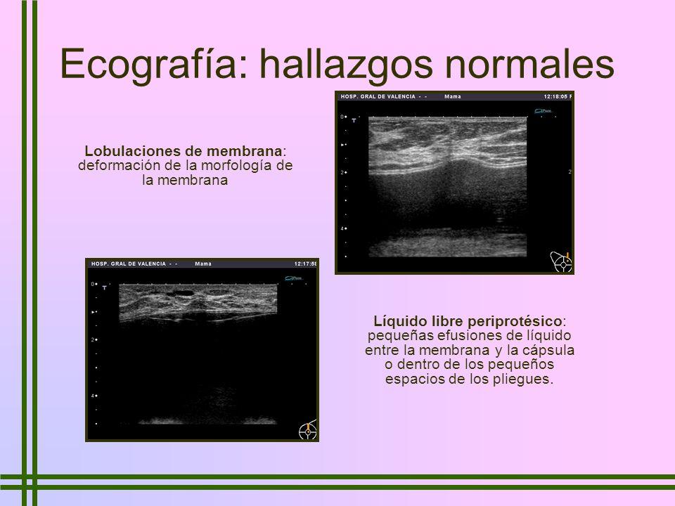 Ecografía: hallazgos normales Lobulaciones de membrana: deformación de la morfología de la membrana Líquido libre periprotésico: pequeñas efusiones de