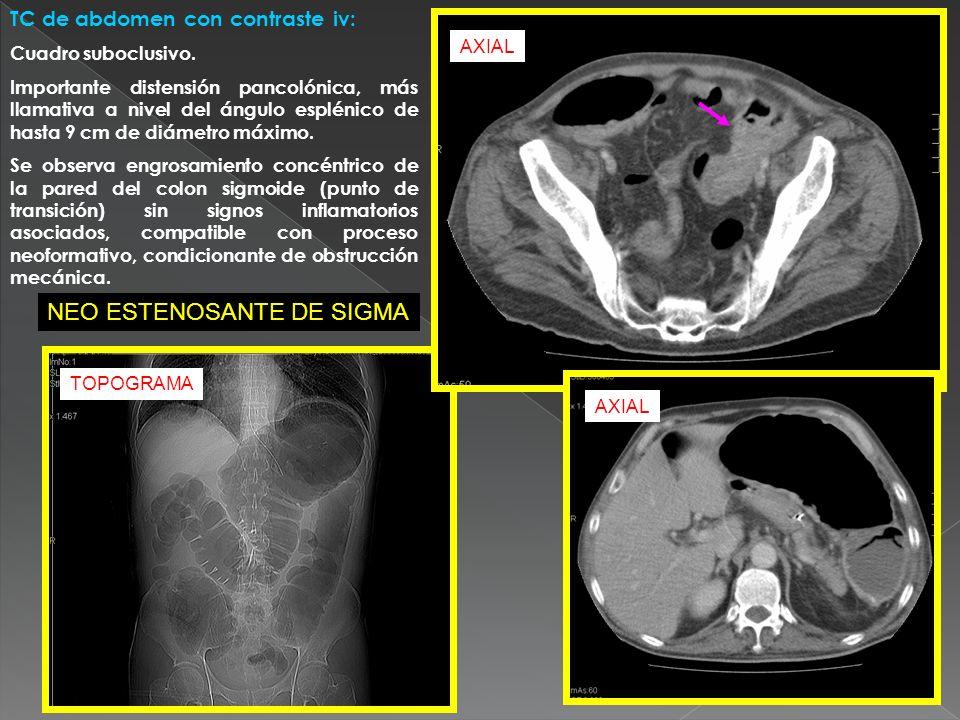 TC de abdomen con contraste iv: Cuadro suboclusivo. Importante distensión pancolónica, más llamativa a nivel del ángulo esplénico de hasta 9 cm de diá