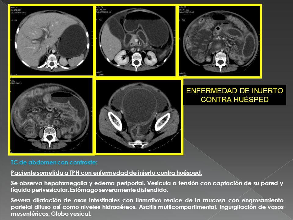 TC de abdomen con contraste: Paciente sometida a TPH con enfermedad de injerto contra huésped. Se observa hepatomegalia y edema periportal. Vesícula a