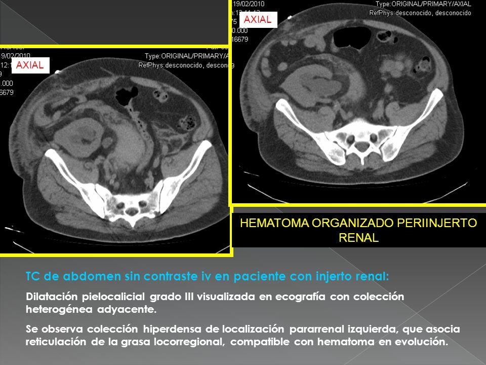 TC de abdomen sin contraste iv en paciente con injerto renal: Dilatación pielocalicial grado III visualizada en ecografía con colección heterogénea ad