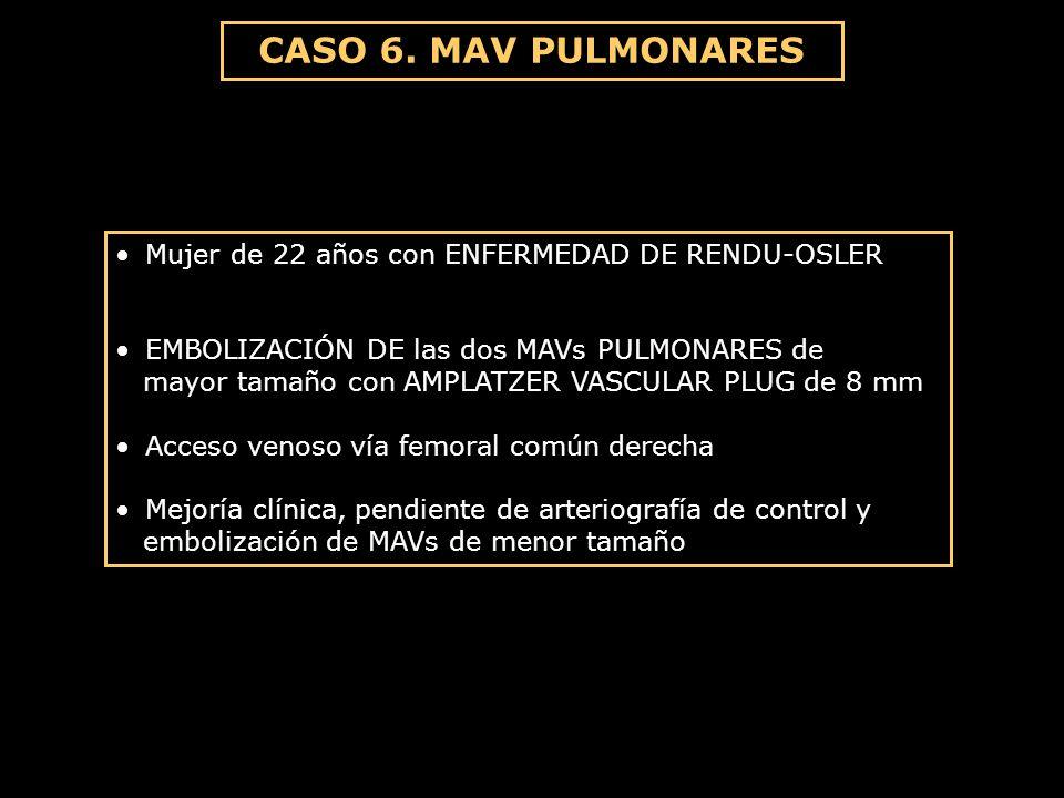 CASO 6. MAV PULMONARES Mujer de 22 años con ENFERMEDAD DE RENDU-OSLER EMBOLIZACIÓN DE las dos MAVs PULMONARES de mayor tamaño con AMPLATZER VASCULAR P