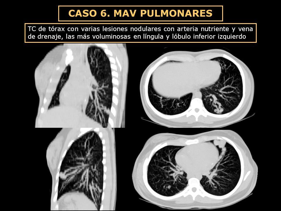 CASO 6. MAV PULMONARES TC de tórax con varias lesiones nodulares con arteria nutriente y vena de drenaje, las más voluminosas en língula y lóbulo infe