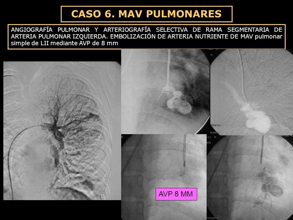 CASO 6. MAV PULMONARES ANGIOGRAFÍA PULMONAR Y ARTERIOGRAFÍA SELECTIVA DE RAMA SEGMENTARIA DE ARTERIA PULMONAR IZQUIERDA. EMBOLIZACIÓN DE ARTERIA NUTRI