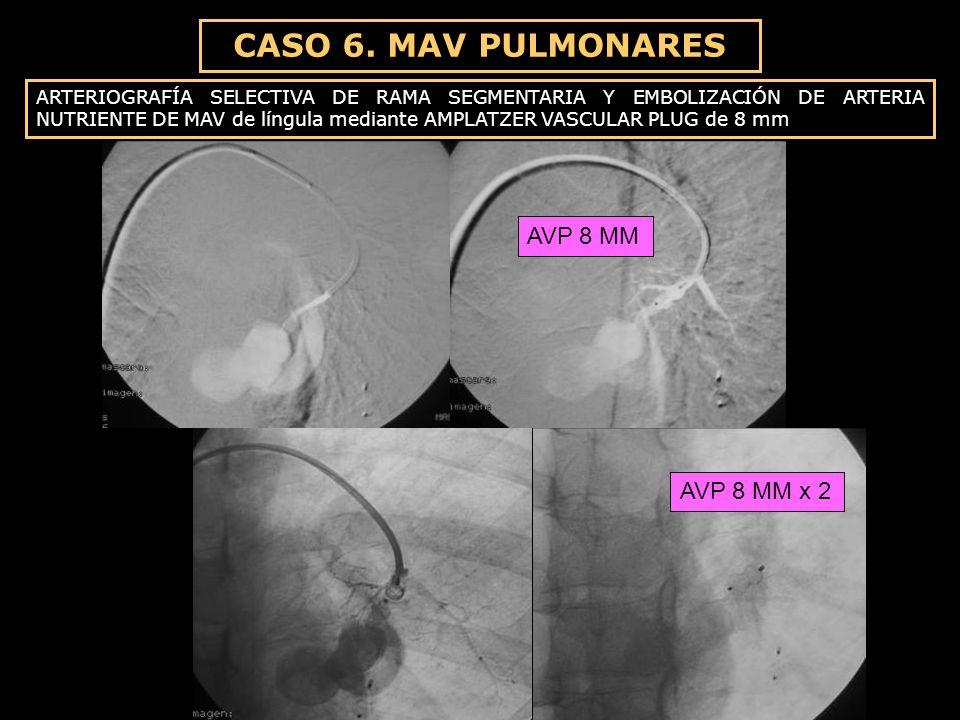 CASO 6. MAV PULMONARES ARTERIOGRAFÍA SELECTIVA DE RAMA SEGMENTARIA Y EMBOLIZACIÓN DE ARTERIA NUTRIENTE DE MAV de língula mediante AMPLATZER VASCULAR P