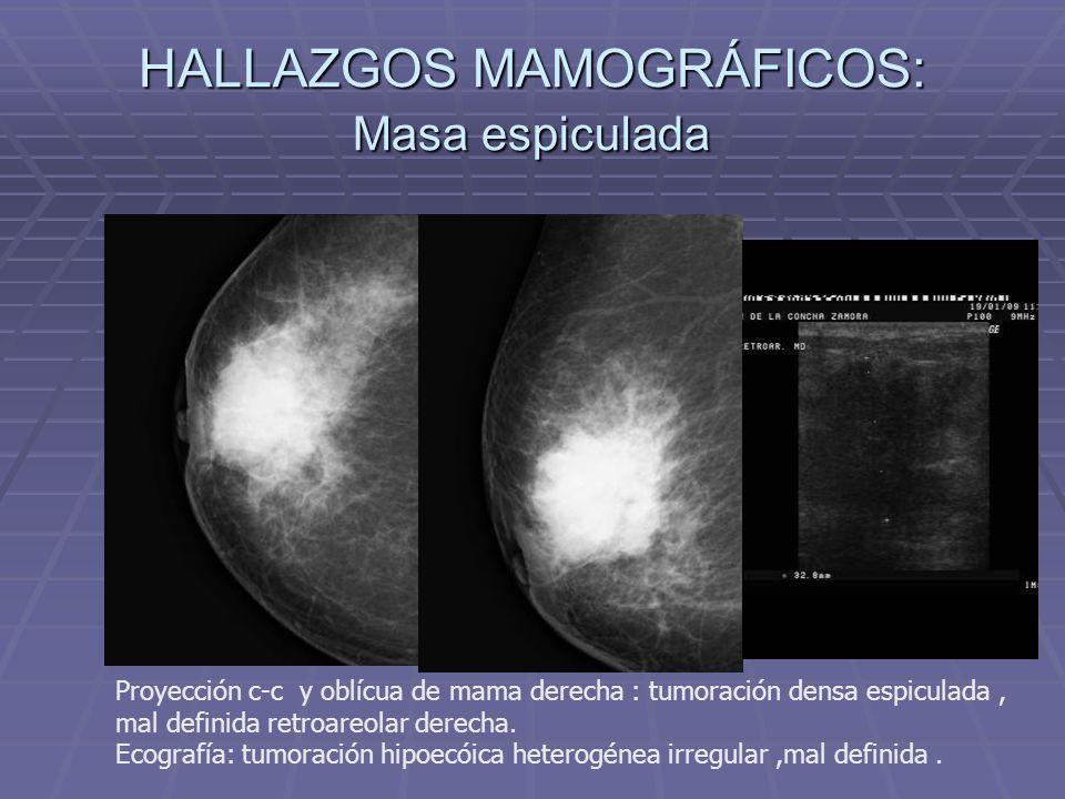 HALLAZGOS MAMOGRÁFICOS: Masa espiculada Proyección c-c forzada axilar de mama izquierda : tumoración densa espiculada.