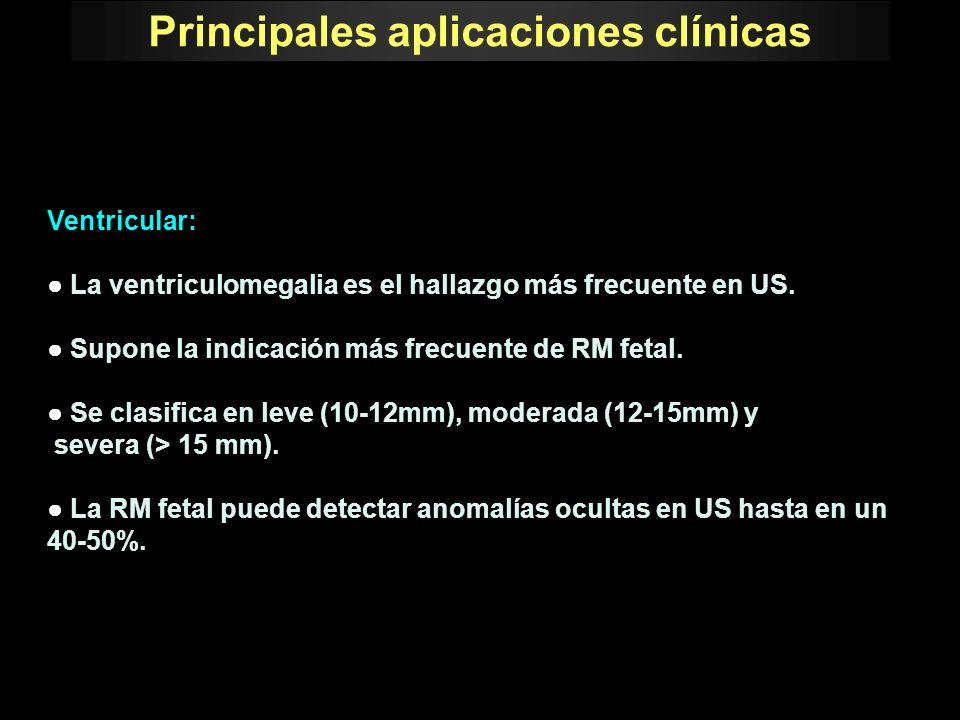 Principales aplicaciones clínicas Ventricular: La ventriculomegalia es el hallazgo más frecuente en US. Supone la indicación más frecuente de RM fetal