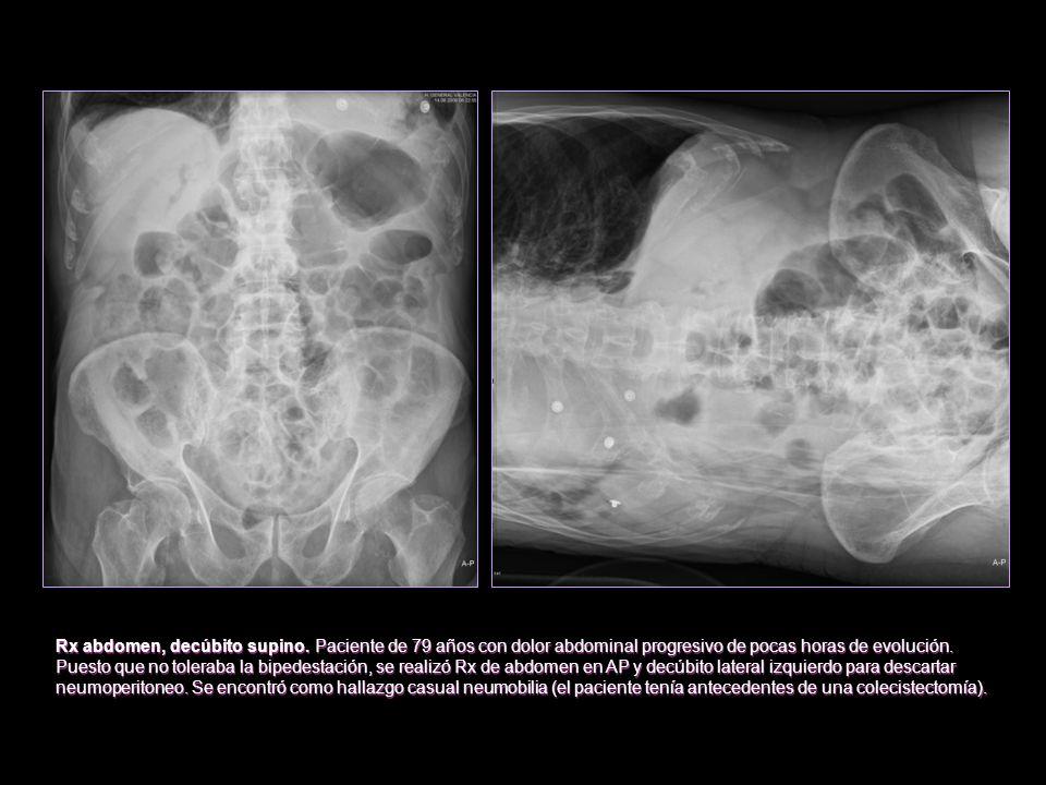 Rx abdomen, decúbito supino. Paciente de 79 años con dolor abdominal progresivo de pocas horas de evolución. Puesto que no toleraba la bipedestación,