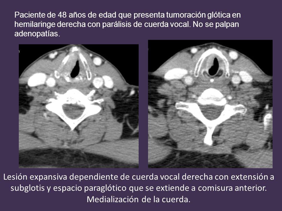 Lesión expansiva dependiente de cuerda vocal derecha con extensión a subglotis y espacio paraglótico que se extiende a comisura anterior.