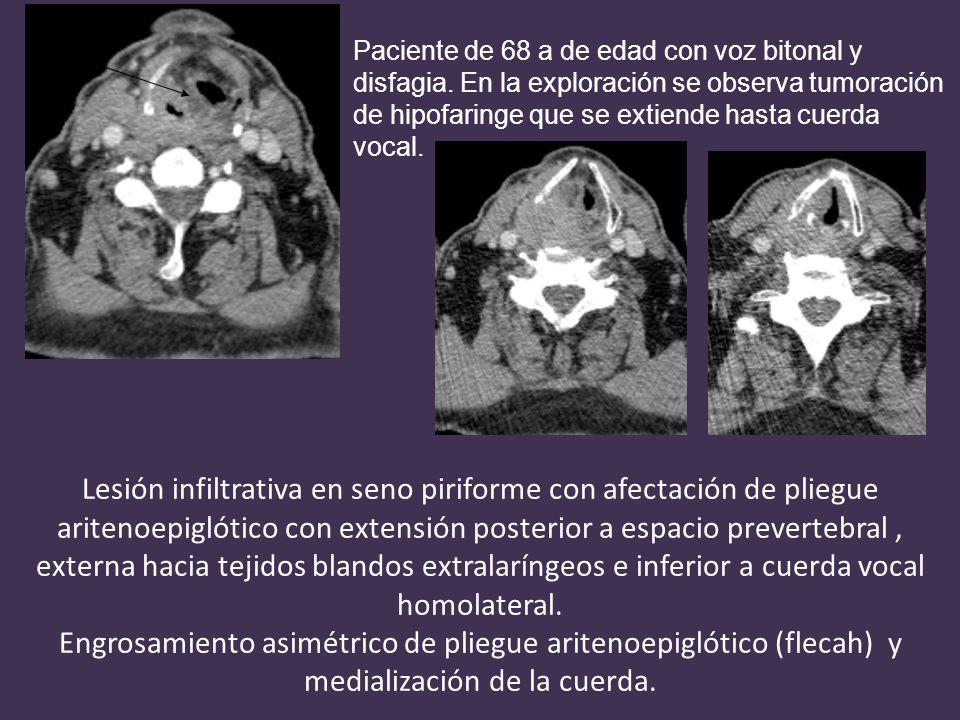 Lesión infiltrativa en seno piriforme con afectación de pliegue aritenoepiglótico con extensión posterior a espacio prevertebral, externa hacia tejidos blandos extralaríngeos e inferior a cuerda vocal homolateral.