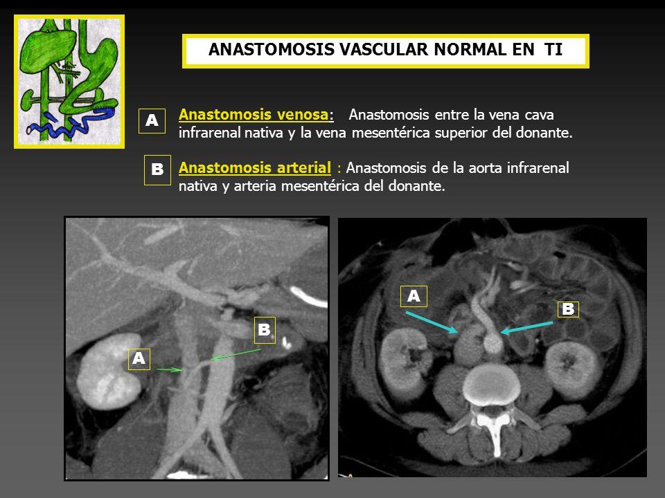 ANASTOMOSIS VASCULAR NORMAL EN TI Anastomosis venosa: Anastomosis entre la vena cava infrarenal nativa y la vena mesentérica superior del donante. Ana