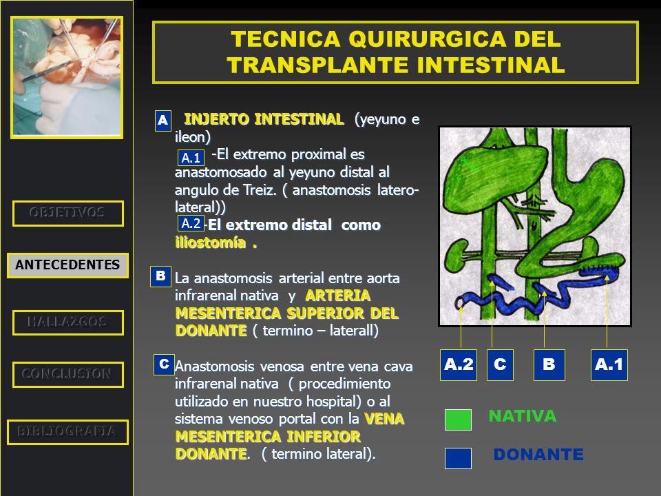 ANTECEDENTES TECNICA QUIRURGICA DEL TRANSPLANTE MULTIVISCERAL ANASTOMOSIS INTESTINALES Anastomosis proximal: Fundus gastrico nativo con estomago del donante.