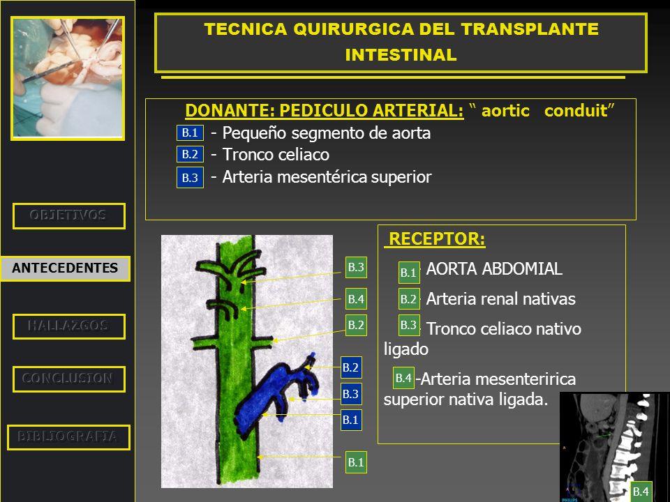 DONANTE: PEDICULO ARTERIAL: aortic conduit - Pequeño segmento de aorta - Tronco celiaco - Arteria mesentérica superior ANTECEDENTES TECNICA QUIRURGICA