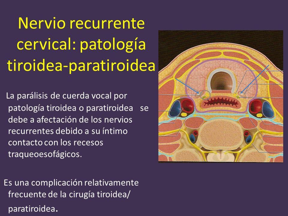 Nervio recurrente cervical: patología tiroidea-paratiroidea La parálisis de cuerda vocal por patología tiroidea o paratiroidea se debe a afectación de los nervios recurrentes debido a su íntimo contacto con los recesos traqueoesofágicos.