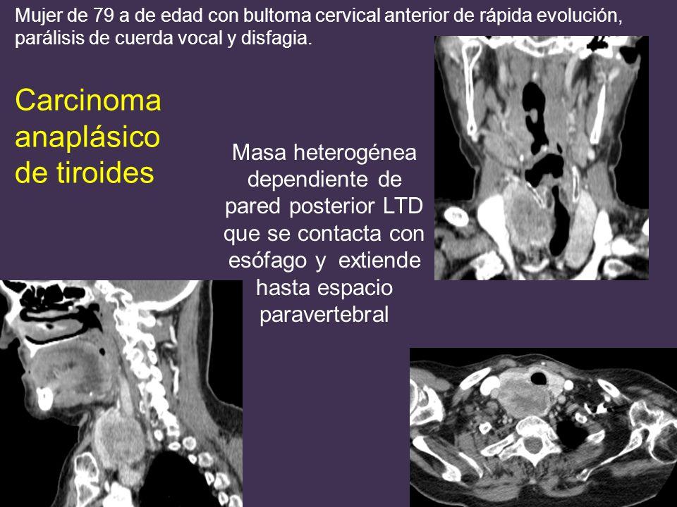 Masa heterogénea dependiente de pared posterior LTD que se contacta con esófago y extiende hasta espacio paravertebral Mujer de 79 a de edad con bultoma cervical anterior de rápida evolución, parálisis de cuerda vocal y disfagia.