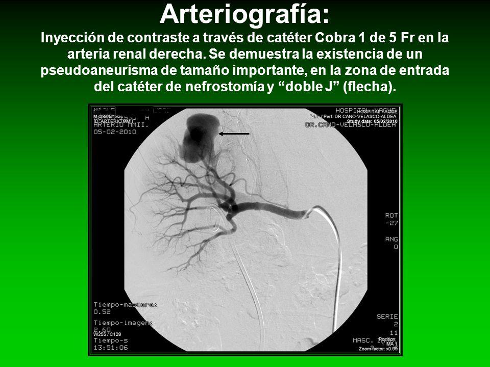 Arteriografía: Inyección de contraste a través de catéter Cobra 1 de 5 Fr en la arteria renal derecha. Se demuestra la existencia de un pseudoaneurism